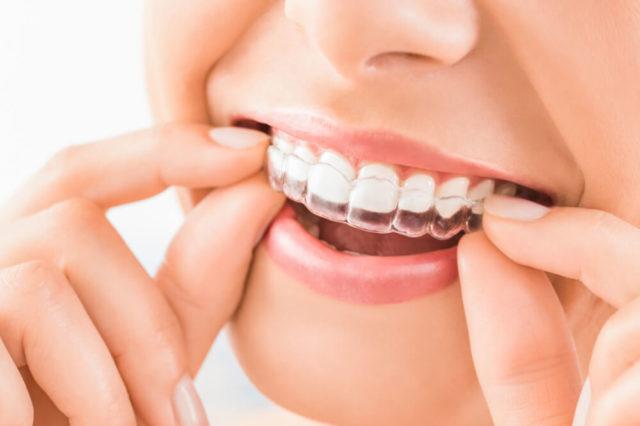 bite-dentale